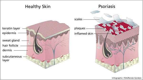 cure psoriasis naturally