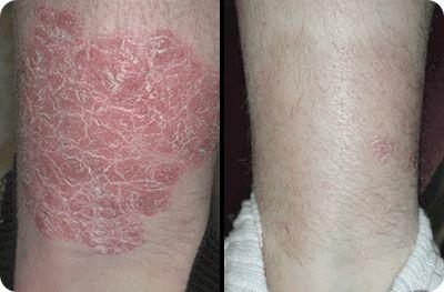 does psoriasis free for life work