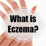 natural eczema relief cure