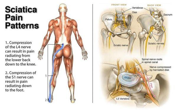 cure sciatica home remedies