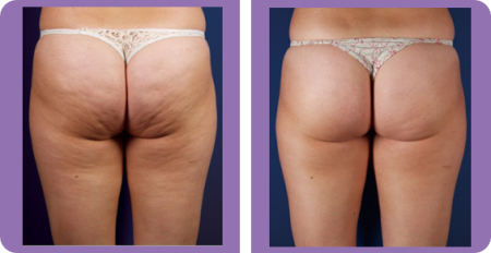 how to get rid of cellulite on bum
