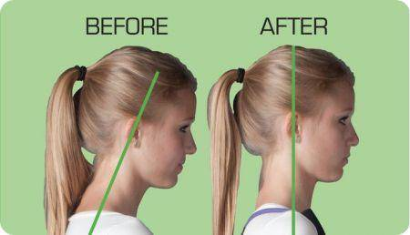 how to fix forward head posture fast