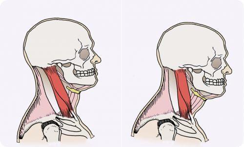 natural forward head posture treatment at home